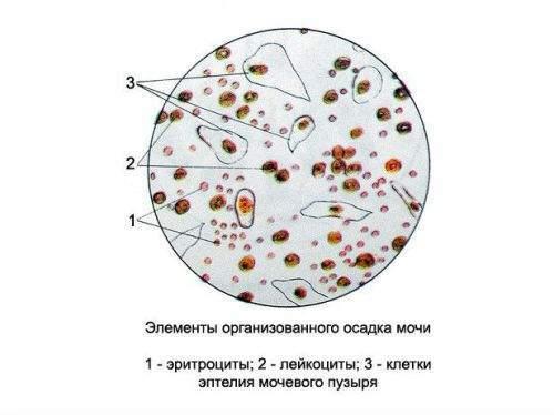 Лейкоциты в моче при беременности