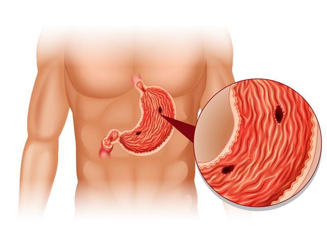 Желудок: где находится и как болит, симптомы и лечение болевого синдрома