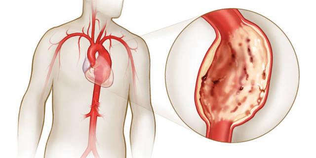 Аневризма аорты сердца: причины, симптомы и нужна ли операция для лечения
