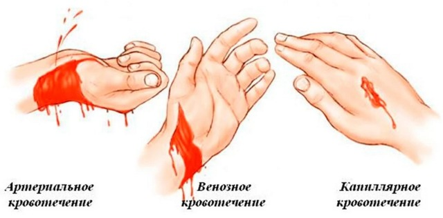 Венозное кровотечение: признаки, первая помощь и причины