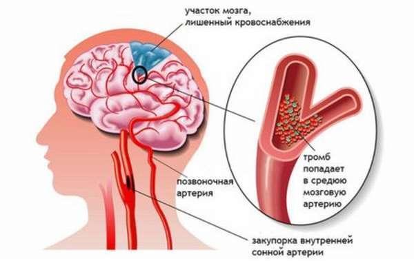 Время и длительность кровотечения: норма и проведение анализа по Дюке
