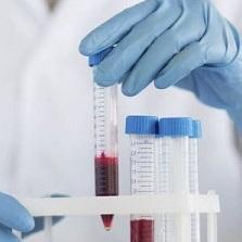 СРБ в биохимическом анализе крови: когда повышенный и норма