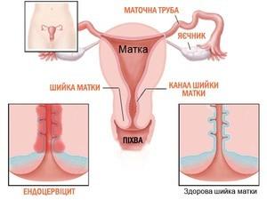 Причины кисты на шейке матки