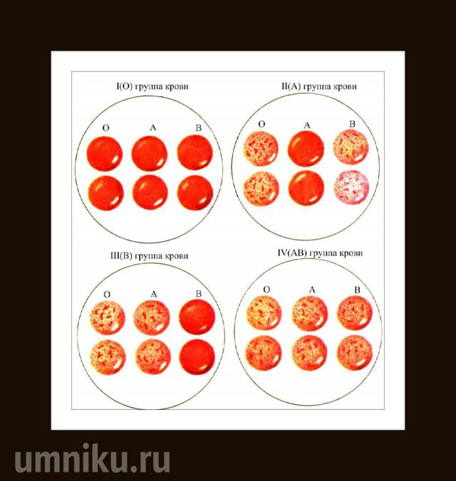 Группа крови и резус-фактор, таблица с вариантами их наследования