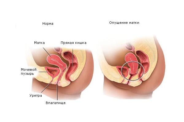 Пластическая операция при опущении матки