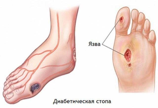 Диабетическая ангиопатия нижних конечностей: лечение, симптомы, причины и профилактика