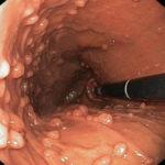 Гиперпластический полип желудка: что это такое, нужно ли удалять, как лечить