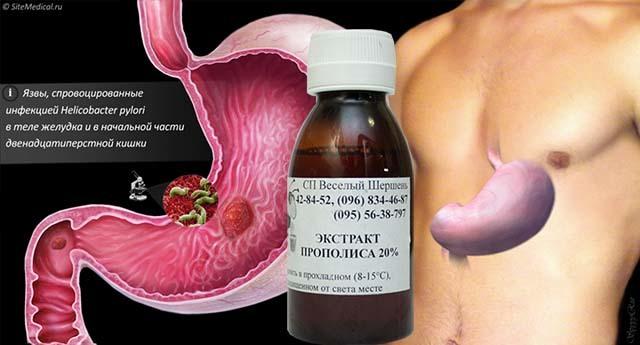 Настойка прополиса при гипертонии: рецепты для лечения