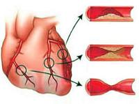 Ишемическая болезнь сердца – серьезная угроза для людей xxi века