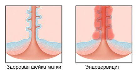 Что такое эндоцервикс