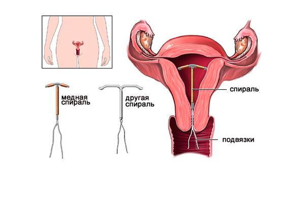Причины кровотечения из шейки матки