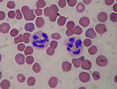 Сегментоядерные нейтрофилы: норма, почему понижены и повышены в крови