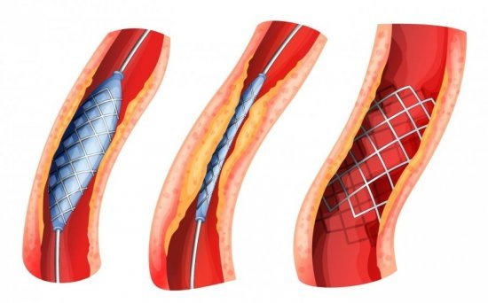 Атеросклеротическая болезнь сердца при ХОБЛ: что это такое, причина смерти
