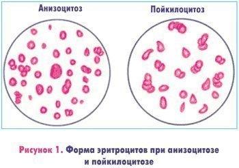 Анизоцитоз (микро незначительный, умеренный, смешанного типа), что это такое