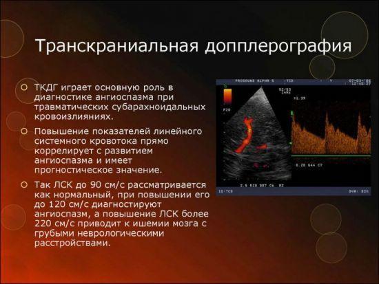 УЗИ сосудов головного мозга и головы: показания, подготовка, преимущества