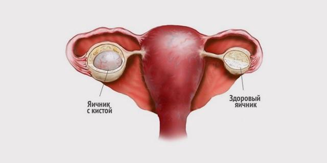 Кистома яичника: симптомы и лечение женщины