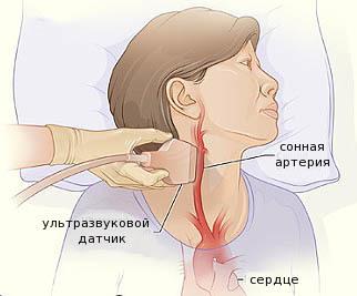 УЗИ сосудов шеи (шейных артерий и вен): как проводится и зачем