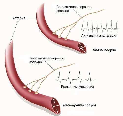 Дистония сосудов головного мозга: симптомы, лечение и причины