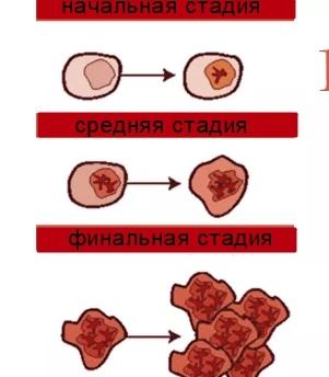Хронический лейкоз крови: лечение, причины и симптомы