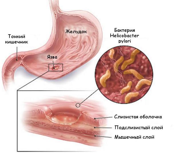 Язва антрального отдела желудка: причины, основные симптомы, лечение, диета