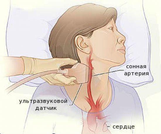 УЗИ сосудов шеи и головы (головного мозга)