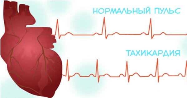 Сильное сердцебиение: что делать и причины повышенного сердцебиения