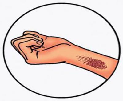 Внутреннее кровотечение: как остановить его и первая помощь, причины