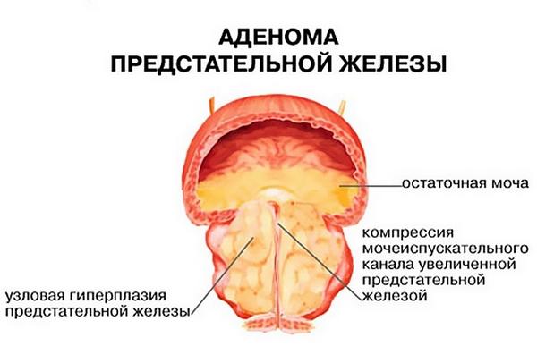 В желудке дискомфорт: причины развития, осложнения, что делать, профилактика