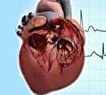 Хроническое легочное сердце: лечение, причины и признаки