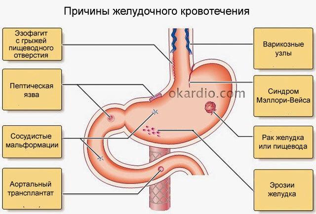 Желудочное кровотечение: разновидности, причины, диагностика, прогноз