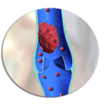 Сосудистые заболевания ног: симптомы, лечение болезней вен