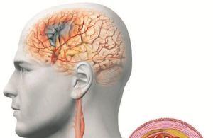 Сосудистый генез головного мозга: что это такое, причины ...
