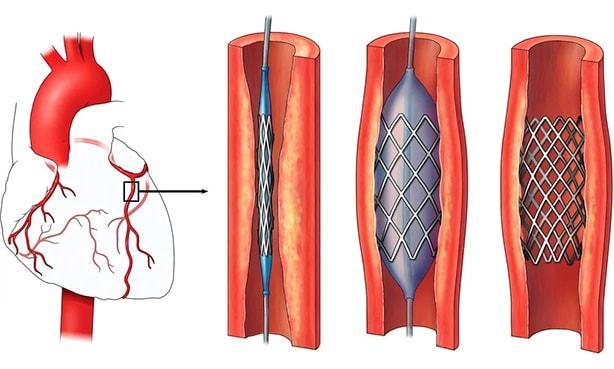 Стентирование сосудов сердца, последствия и реабилитация после операции