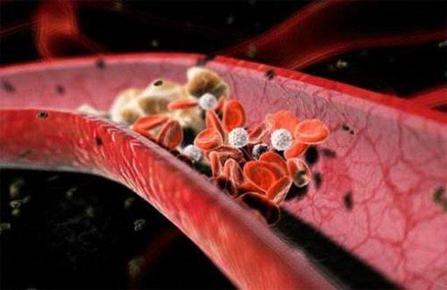 Тромбы в сосудах: как избавиться от них в венах, удаление артериальных тромбов