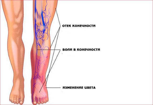 Тромбоэмболия: виды, причины, симптомы артериальной и венозной, лечение