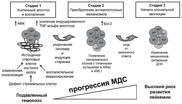 Рефрактерная анемия с избытком бластов, лечение миелодиспластического синдрома