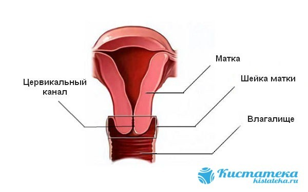 Что такое парацервикальные кисты шейки матки