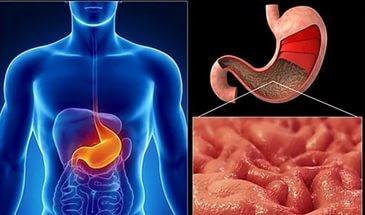 Болит желудок при беременности: что можно принимать, лечение и диетотерапия