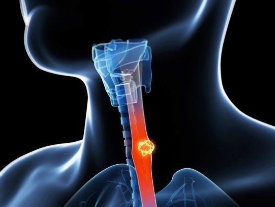 Лейкоплакия пищевода: что это такое, фото, лечение, как развивается, виды и диагностика