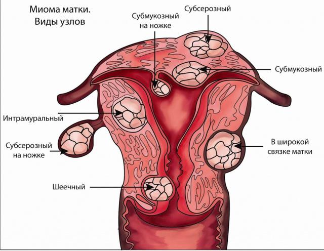 Что такое субмукозная лейомиома матки
