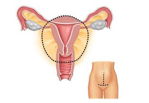 Удаление матки и рак