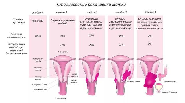 Стадии рака матки