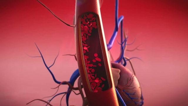 Артериальное кровотечение
