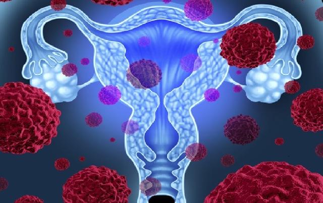 Прогноз рака шейки матки