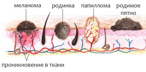 Что такое сургитрон