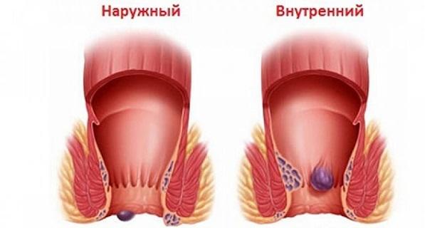 Стадии геморроя: лечение начальной степени, как лечить у женщин и мужчин