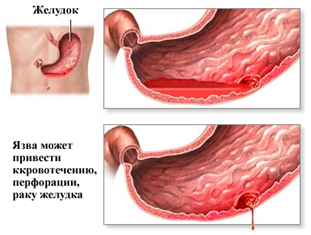 Болит желудок: что это может быть, причины, лечение, симптомы, диагностика