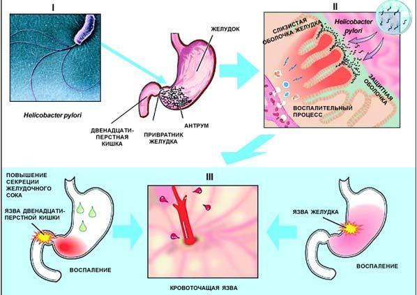 Язва желудка: что это, код по МКБ10, симптомы, виды, диагностика и лечение