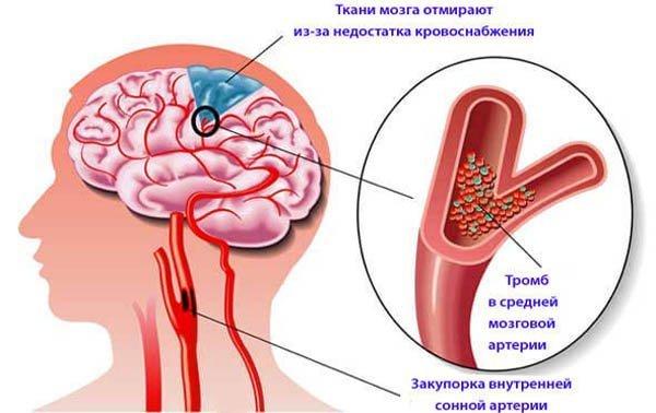 Сосудистые Заболевания: Симптомы, Лечение, Специалисты
