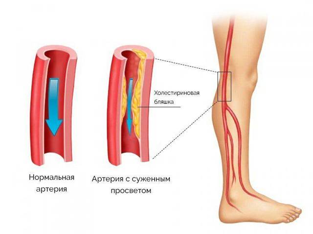 Ангиопатия сосудов нижних конечностей: лечение, симптомы и причины